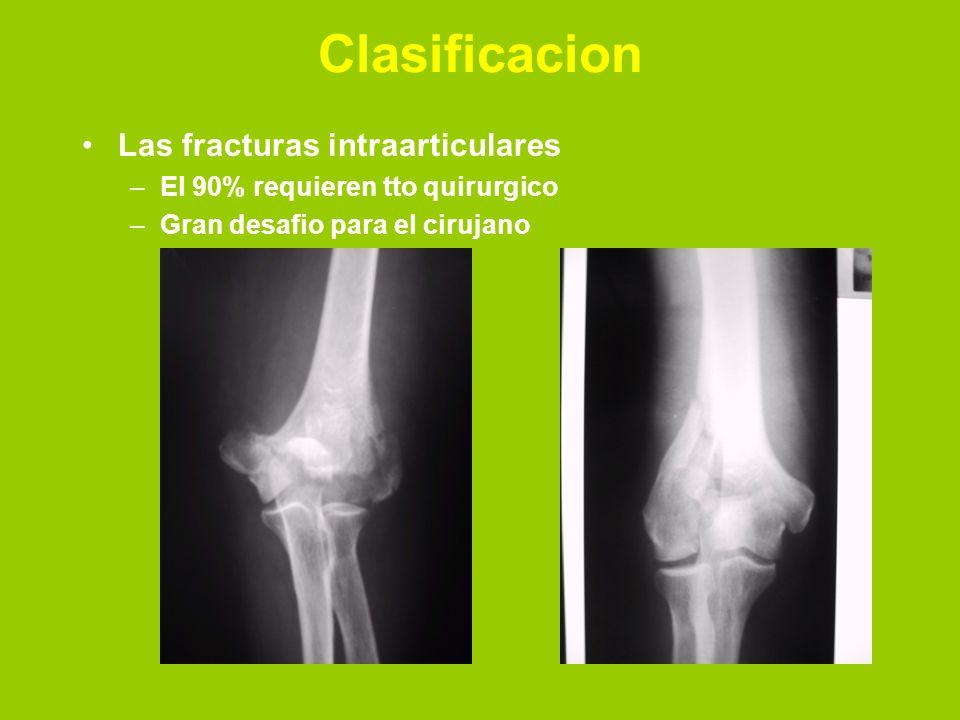 Clasificacion Las fracturas intraarticulares