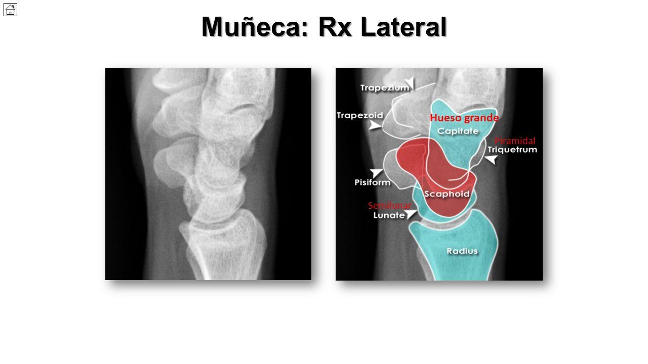 Asombroso Anatomía De La Muñeca Lateral Fotos - Anatomía de Las ...