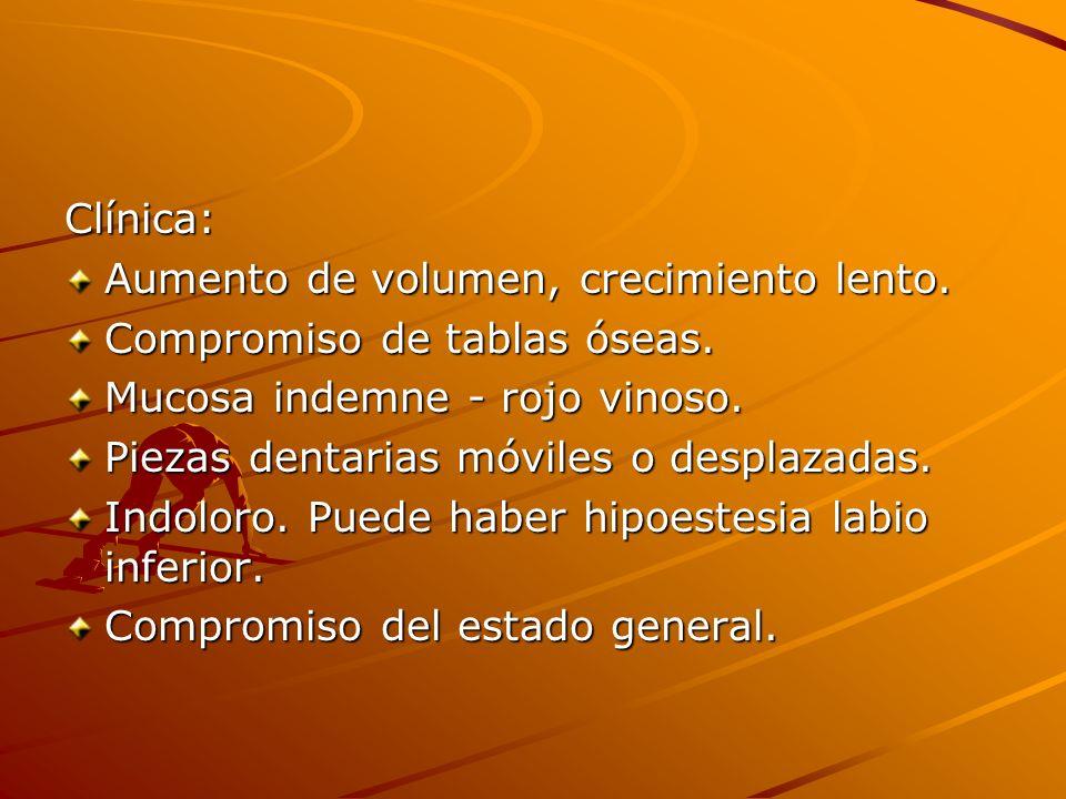 Clínica: Aumento de volumen, crecimiento lento. Compromiso de tablas óseas. Mucosa indemne - rojo vinoso.