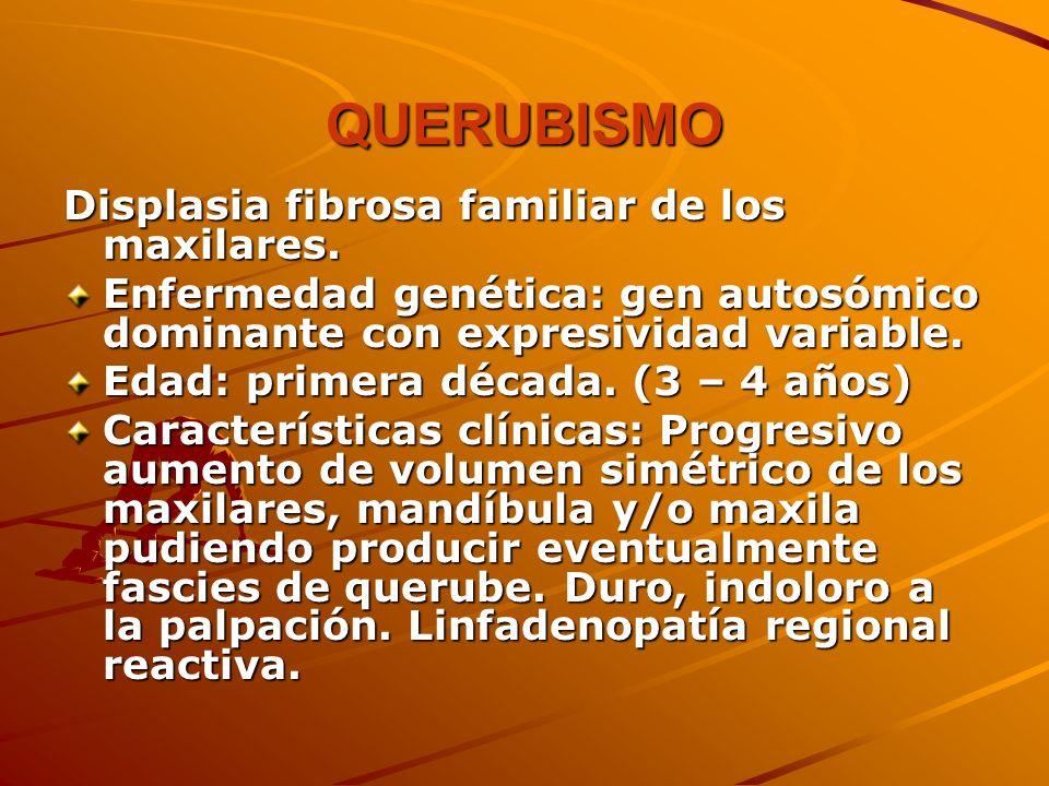 QUERUBISMO Displasia fibrosa familiar de los maxilares.