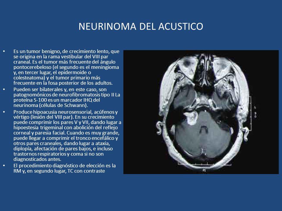 NEURINOMA DEL ACUSTICO