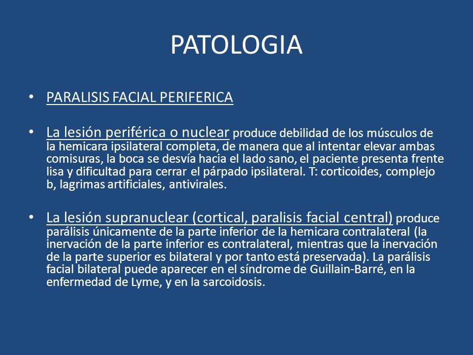 PATOLOGIA PARALISIS FACIAL PERIFERICA