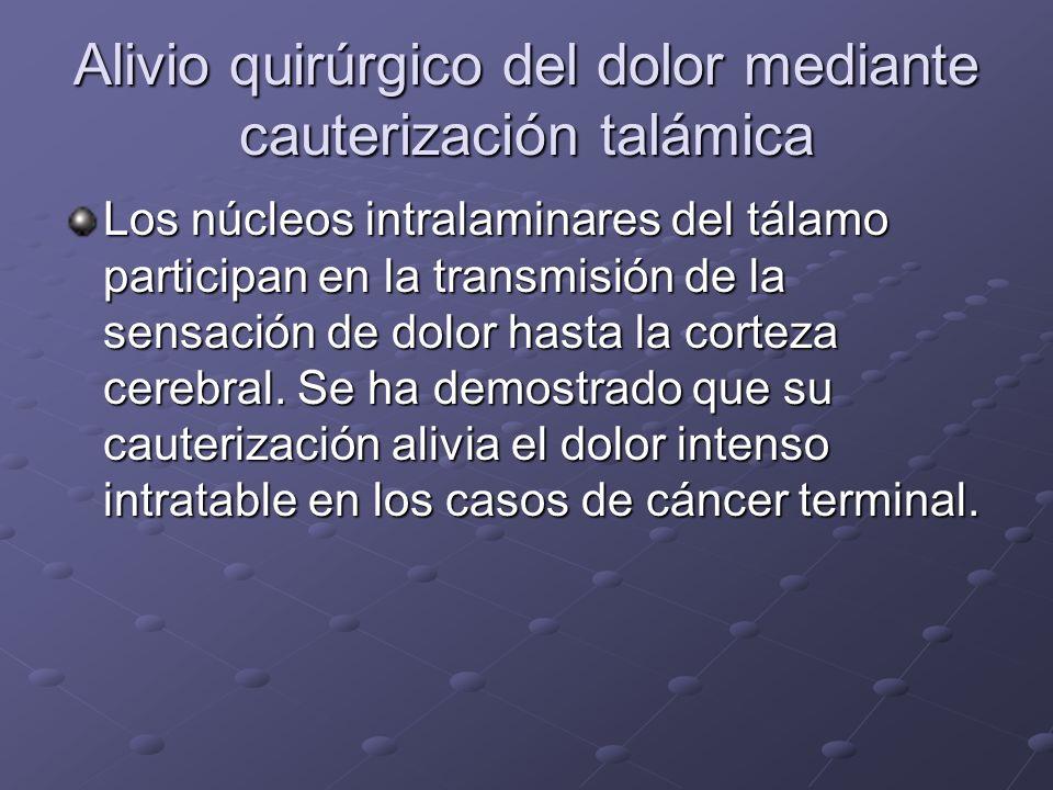 Alivio quirúrgico del dolor mediante cauterización talámica