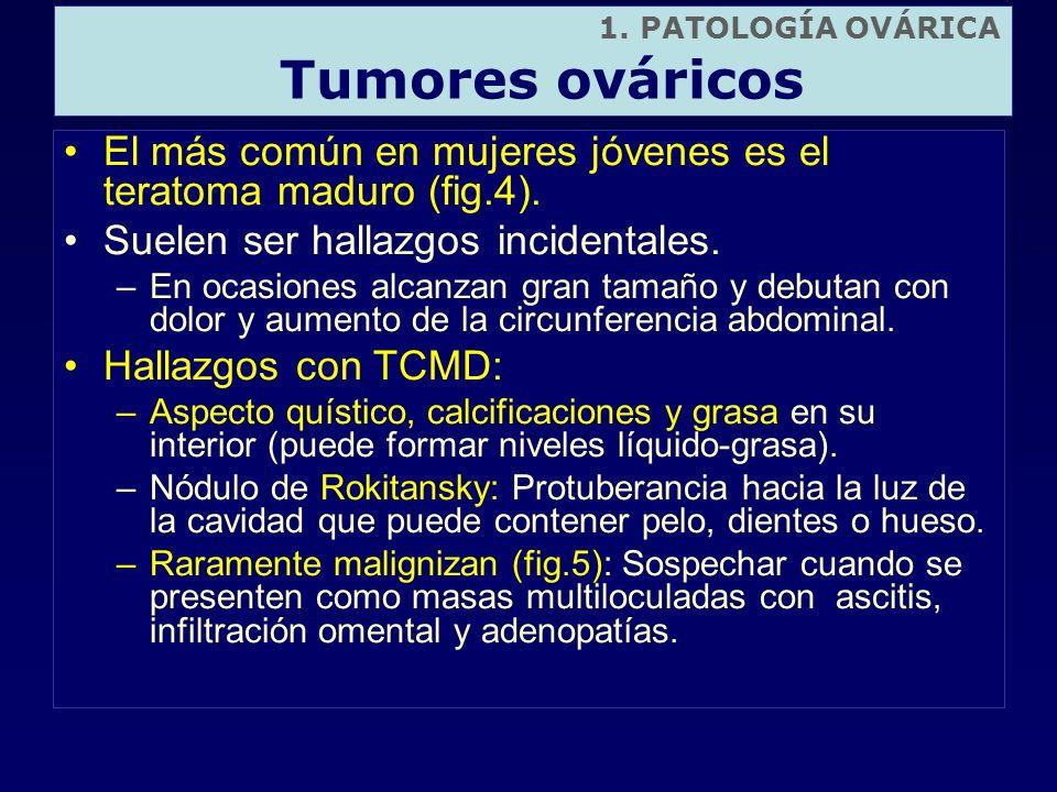 1. PATOLOGÍA OVÁRICATumores ováricos. El más común en mujeres jóvenes es el teratoma maduro (fig.4).