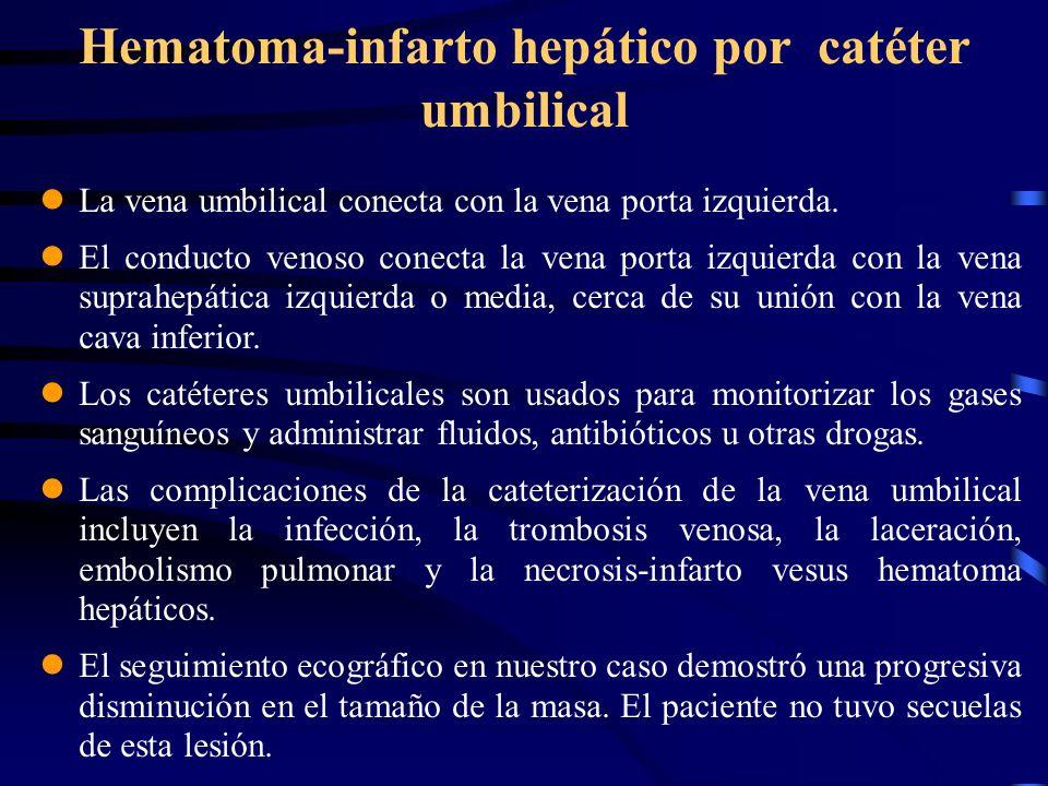 Hematoma-infarto hepático por catéter umbilical