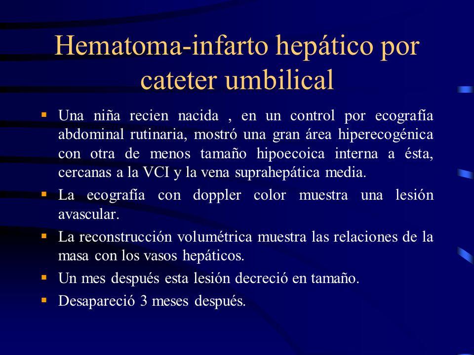 Hematoma-infarto hepático por cateter umbilical