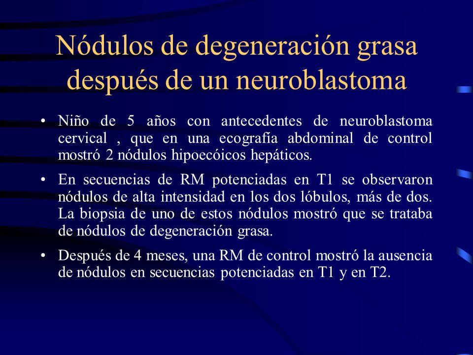 Nódulos de degeneración grasa después de un neuroblastoma