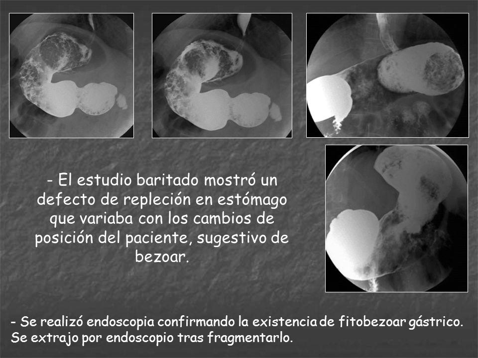 - El estudio baritado mostró un defecto de repleción en estómago que variaba con los cambios de posición del paciente, sugestivo de bezoar.