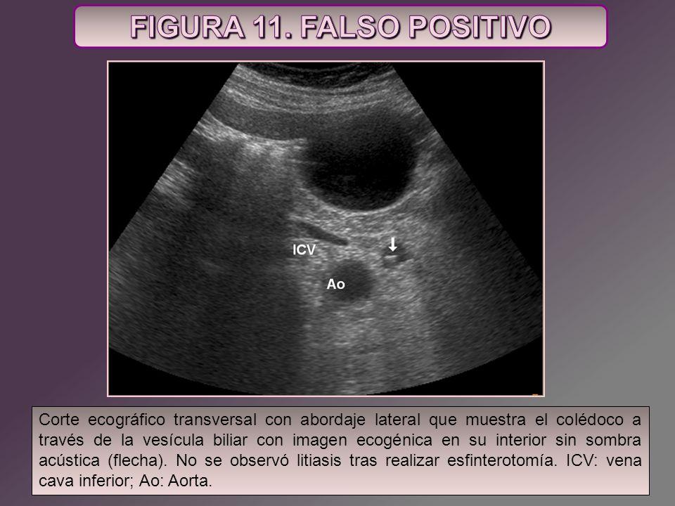 FIGURA 11. FALSO POSITIVO