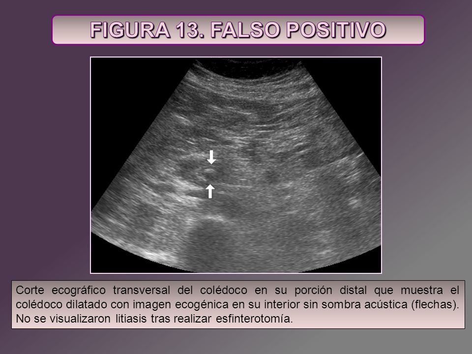 FIGURA 13. FALSO POSITIVO