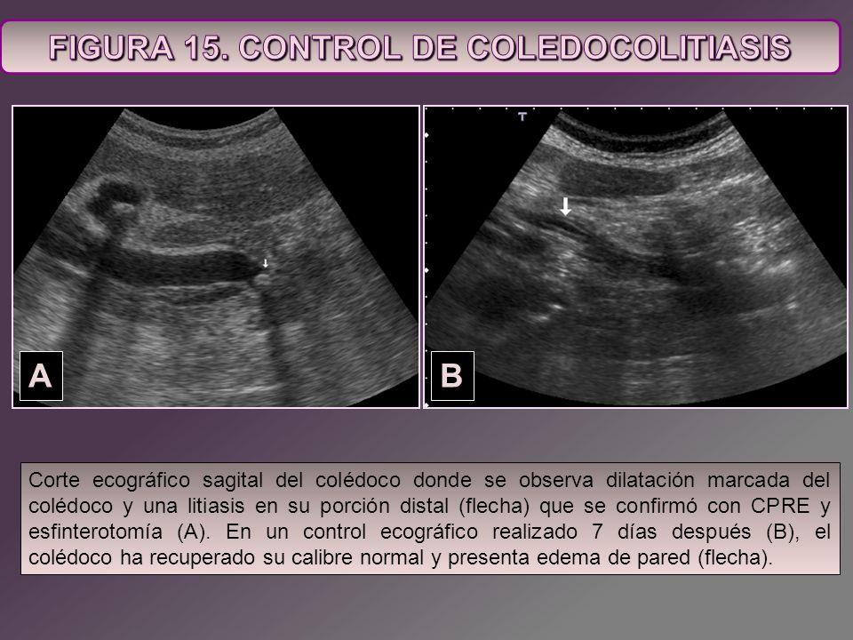 FIGURA 15. CONTROL DE COLEDOCOLITIASIS