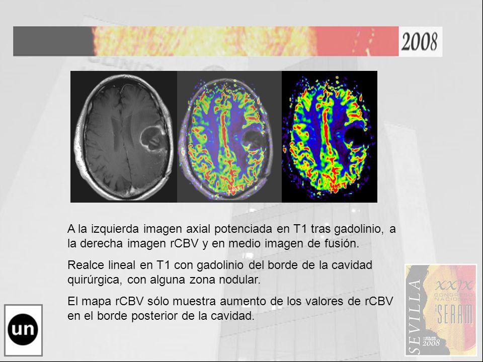 A la izquierda imagen axial potenciada en T1 tras gadolinio, a la derecha imagen rCBV y en medio imagen de fusión.