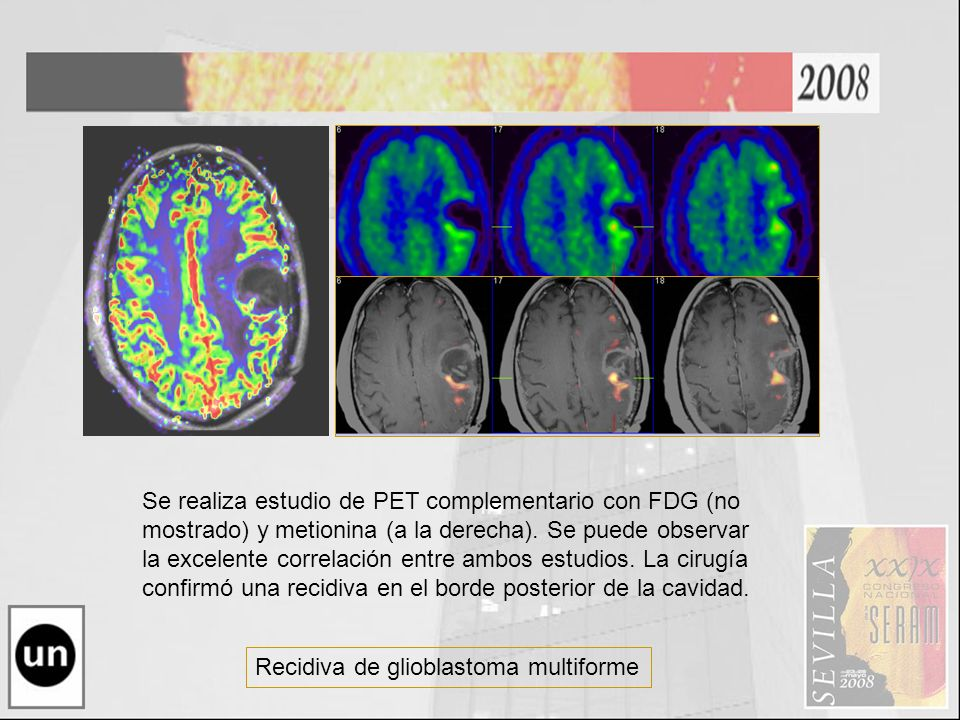 Recidiva de glioblastoma multiforme