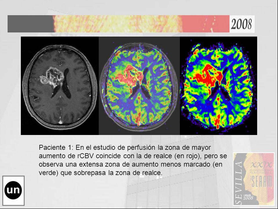 GBM Metastasis.