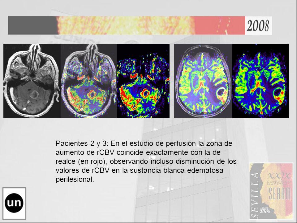 Pacientes 2 y 3: En el estudio de perfusión la zona de aumento de rCBV coincide exactamente con la de realce (en rojo), observando incluso disminución de los valores de rCBV en la sustancia blanca edematosa perilesional.