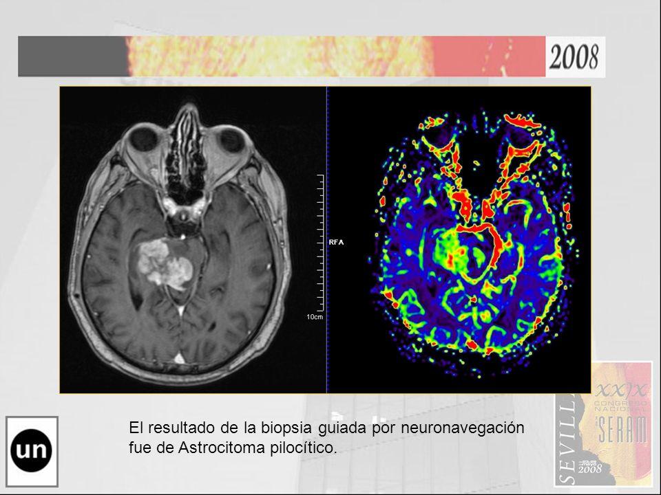 Astrocitoma Pilocitico