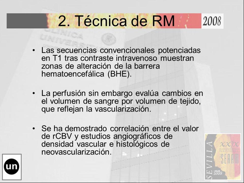 2. Técnica de RM
