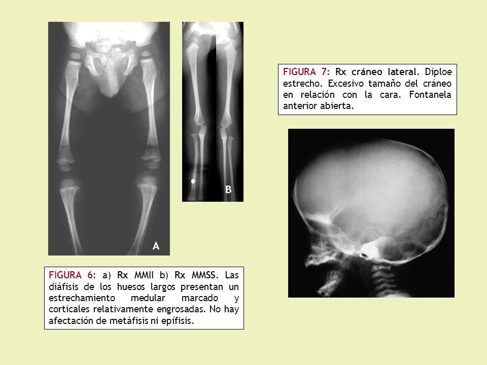FIGURA 7: Rx cráneo lateral. Diploe estrecho