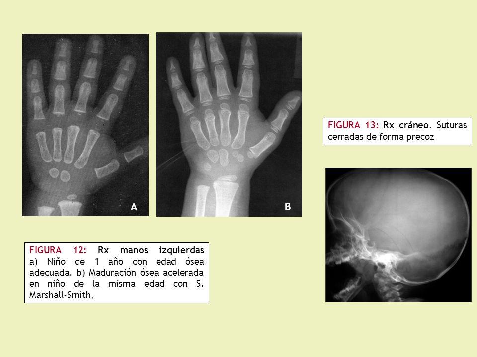 A B FIGURA 13: Rx cráneo. Suturas cerradas de forma precoz