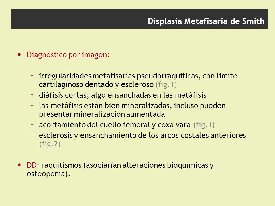 Displasia Metafisaria de Smith