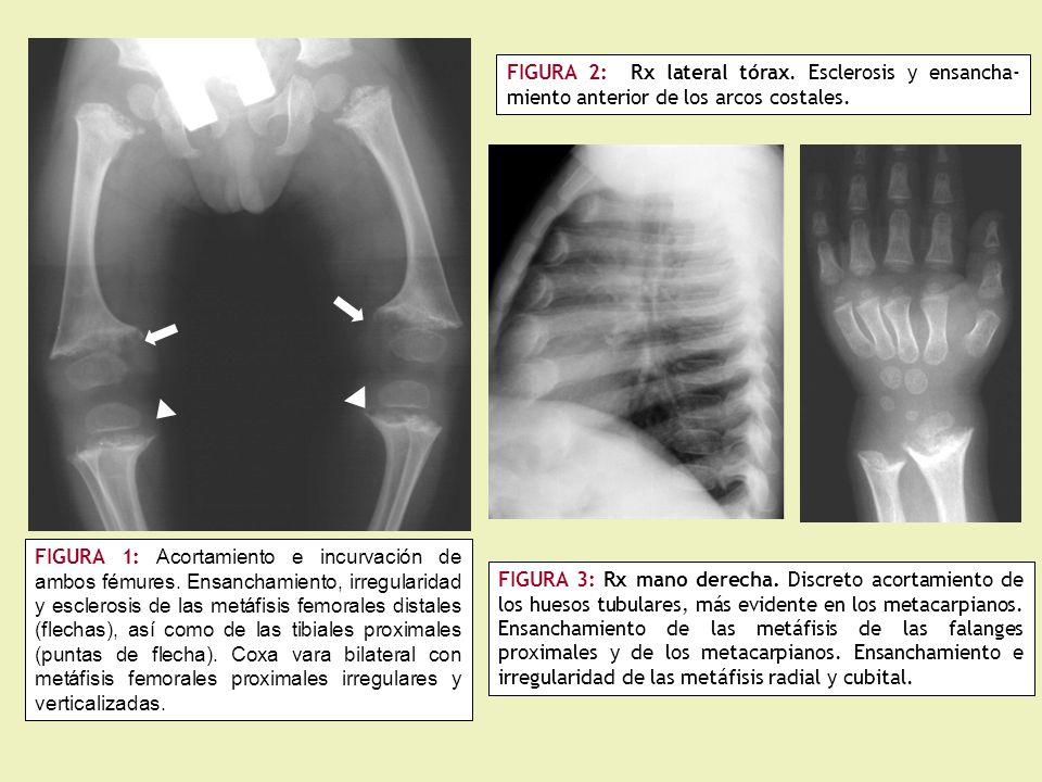 FIGURA 2: Rx lateral tórax