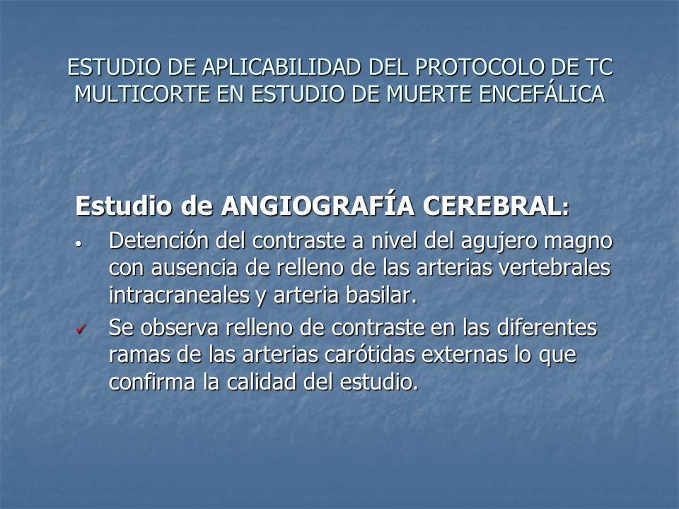 Estudio de ANGIOGRAFÍA CEREBRAL: