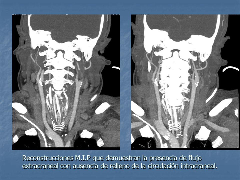 Reconstrucciones M.I.P que demuestran la presencia de flujo extracraneal con ausencia de relleno de la circulación intracraneal.