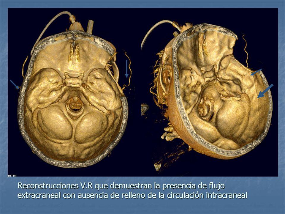 Reconstrucciones V.R que demuestran la presencia de flujo extracraneal con ausencia de relleno de la circulación intracraneal