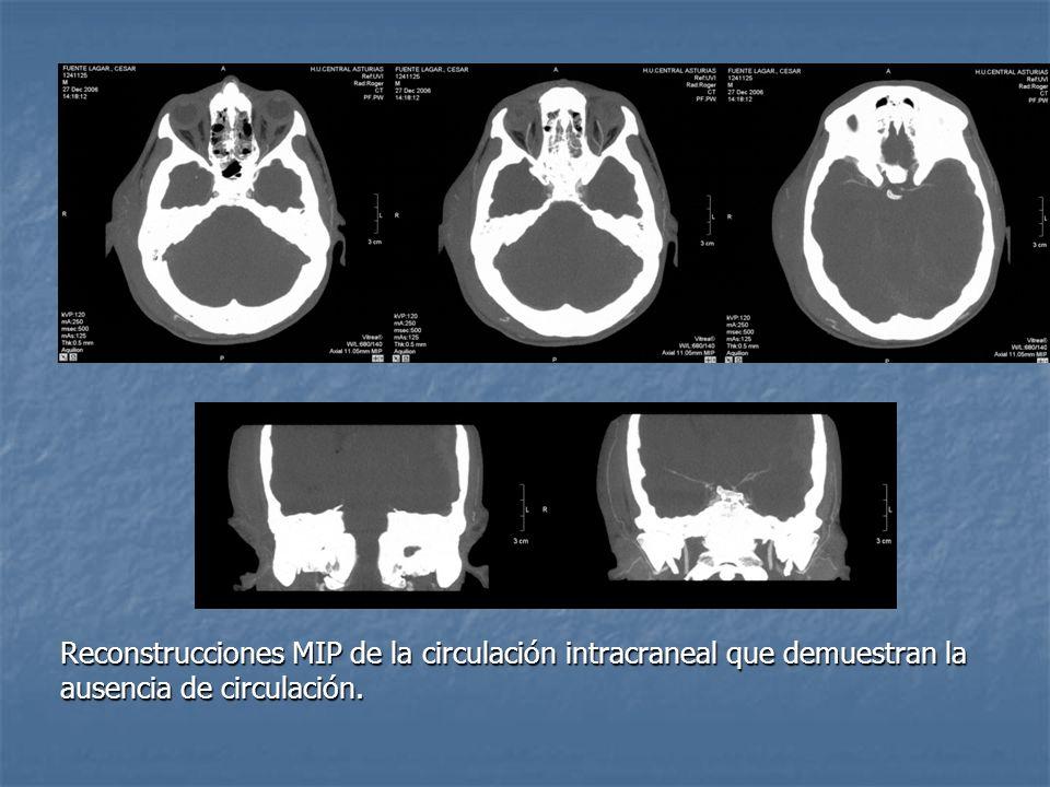 Reconstrucciones MIP de la circulación intracraneal que demuestran la ausencia de circulación.