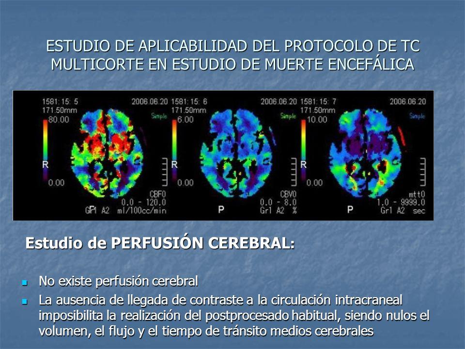ESTUDIO DE APLICABILIDAD DEL PROTOCOLO DE TC MULTICORTE EN ESTUDIO DE MUERTE ENCEFÁLICA