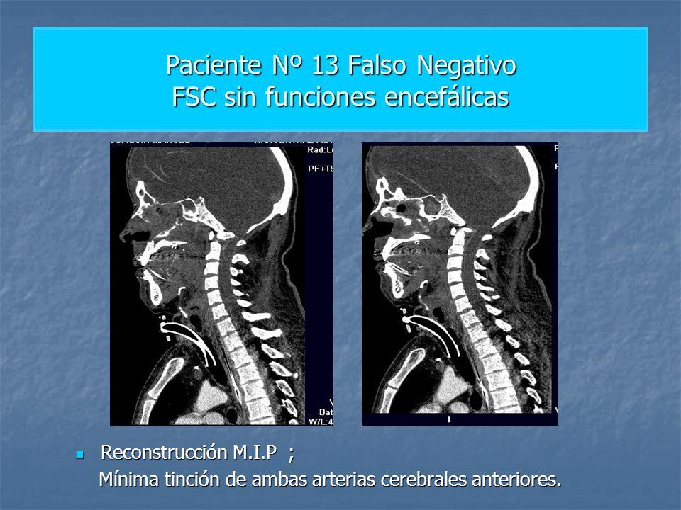 Paciente Nº 13 Falso Negativo FSC sin funciones encefálicas