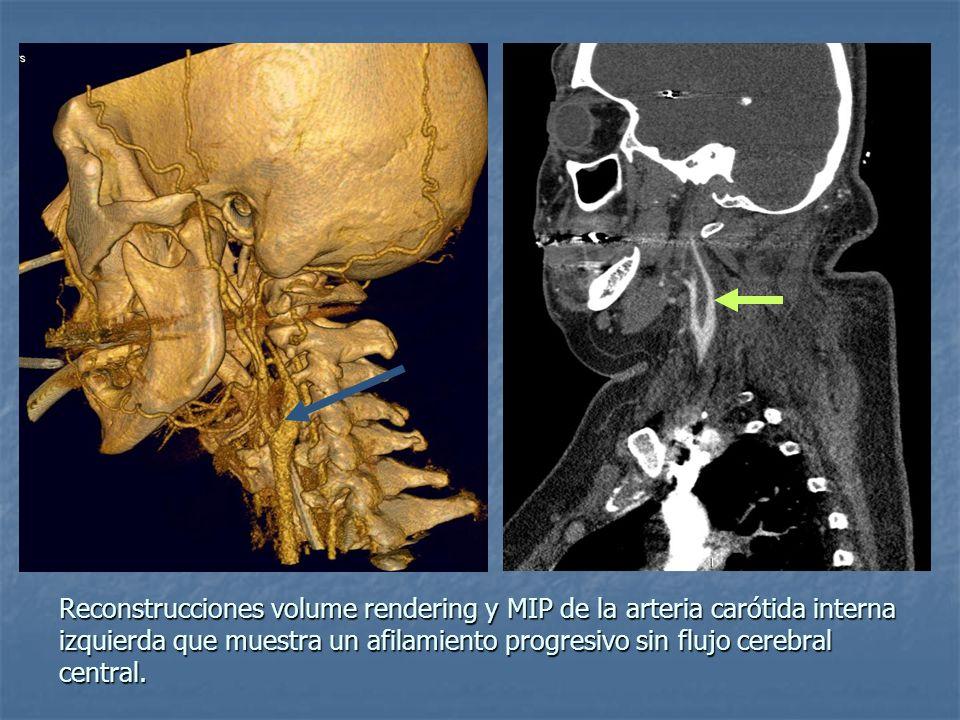 Reconstrucciones volume rendering y MIP de la arteria carótida interna izquierda que muestra un afilamiento progresivo sin flujo cerebral central.