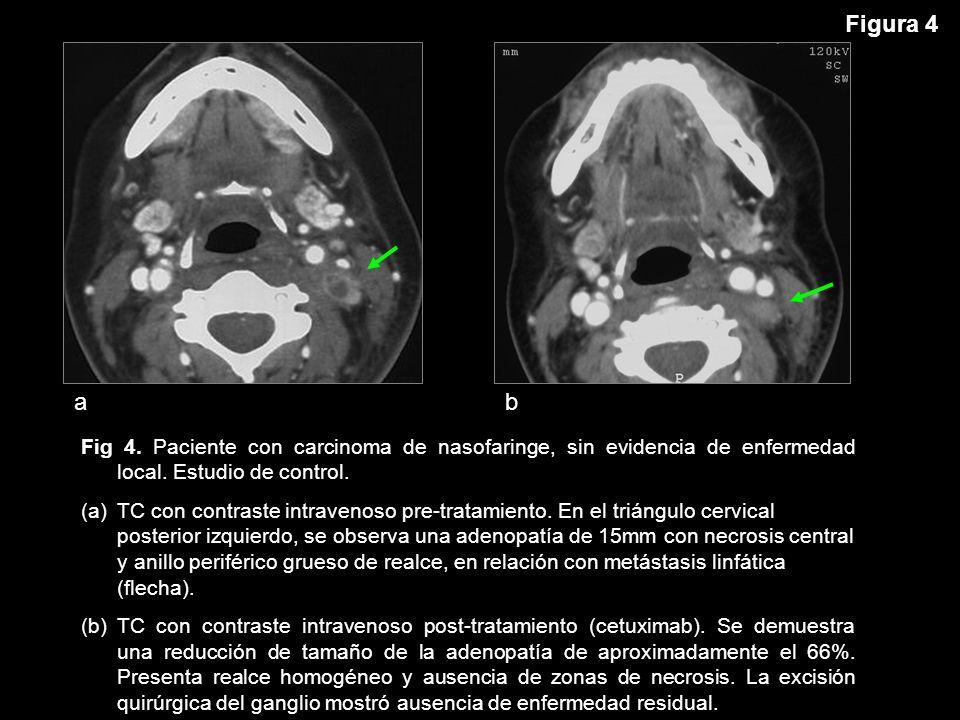 Figura 4 a. b. Fig 4. Paciente con carcinoma de nasofaringe, sin evidencia de enfermedad local. Estudio de control.