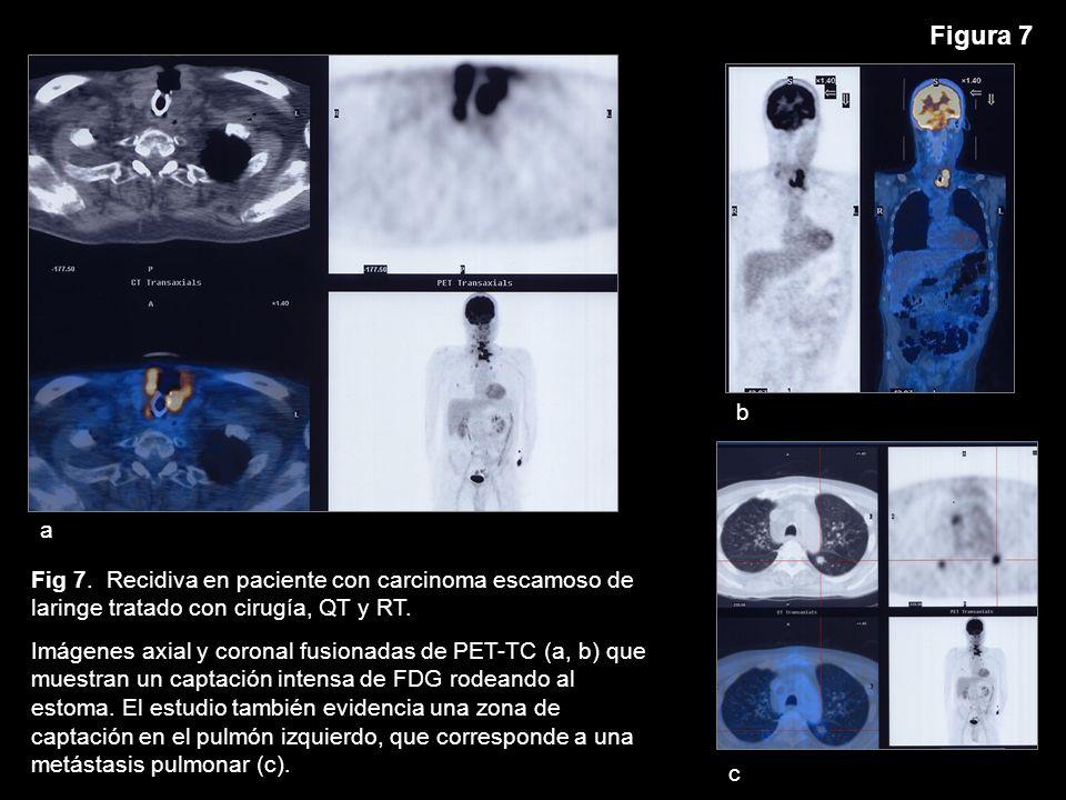 Figura 7 a. b. c. Fig 7. Recidiva en paciente con carcinoma escamoso de laringe tratado con cirugía, QT y RT.