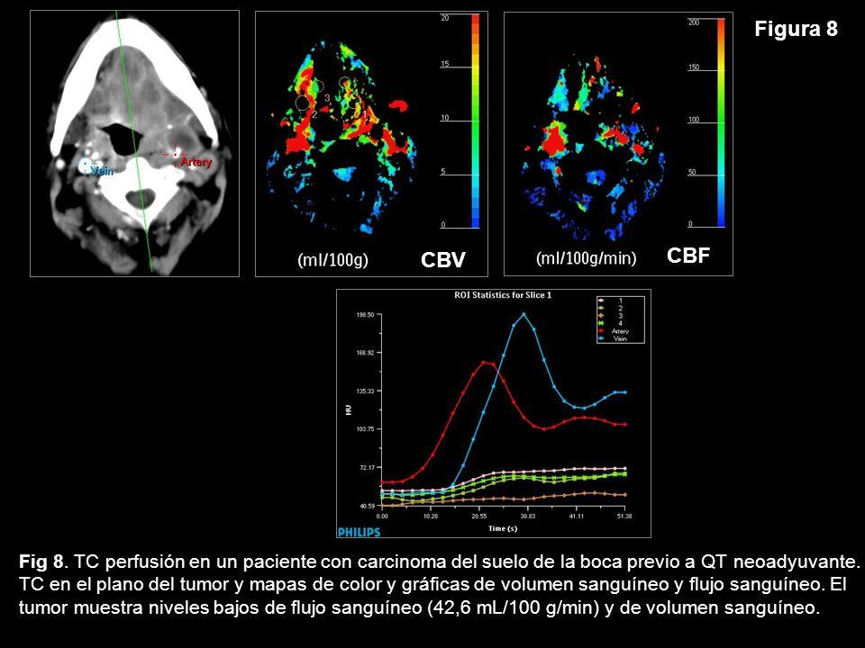 CBF Figura 8. CBV. Fig 8. TC perfusión en un paciente con carcinoma del suelo de la boca previo a QT neoadyuvante.
