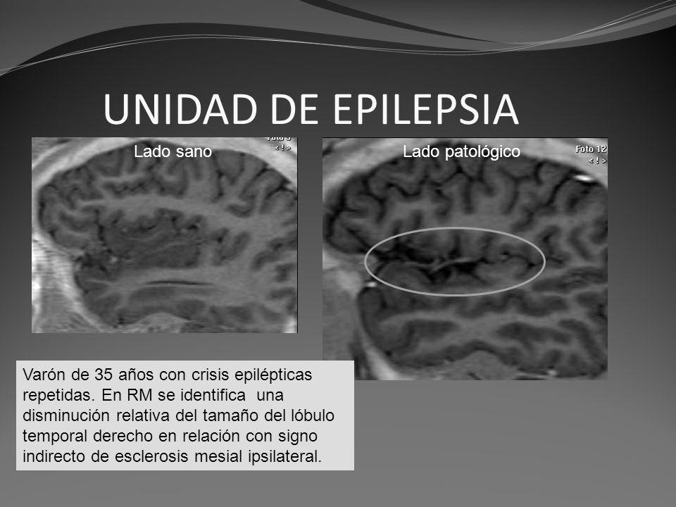 UNIDAD DE EPILEPSIA Lado sano Lado patológico