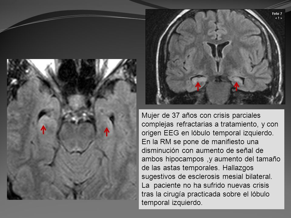 Mujer de 37 años con crisis parciales complejas refractarias a tratamiento, y con origen EEG en lóbulo temporal izquierdo.