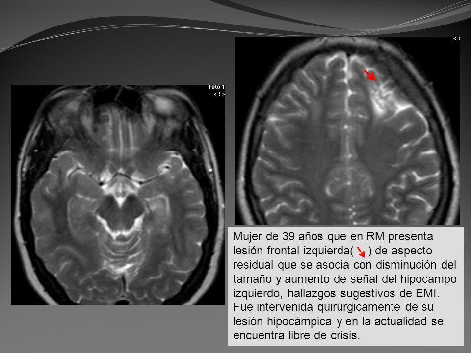Mujer de 39 años que en RM presenta lesión frontal izquierda( ) de aspecto residual que se asocia con disminución del tamaño y aumento de señal del hipocampo izquierdo, hallazgos sugestivos de EMI.