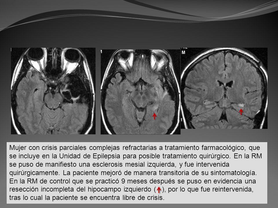 Mujer con crisis parciales complejas refractarias a tratamiento farmacológico, que se incluye en la Unidad de Epilepsia para posible tratamiento quirúrgico.