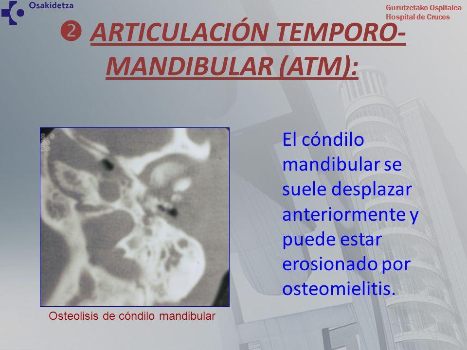  ARTICULACIÓN TEMPORO-MANDIBULAR (ATM):