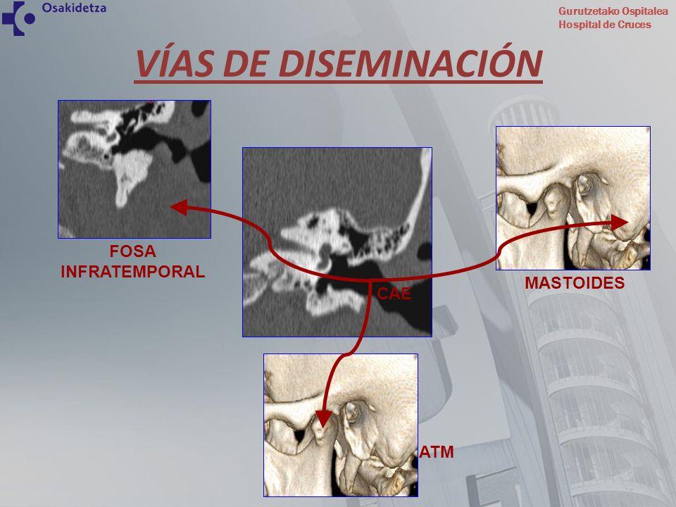 VÍAS DE DISEMINACIÓN FOSA INFRATEMPORAL MASTOIDES CAE ATM
