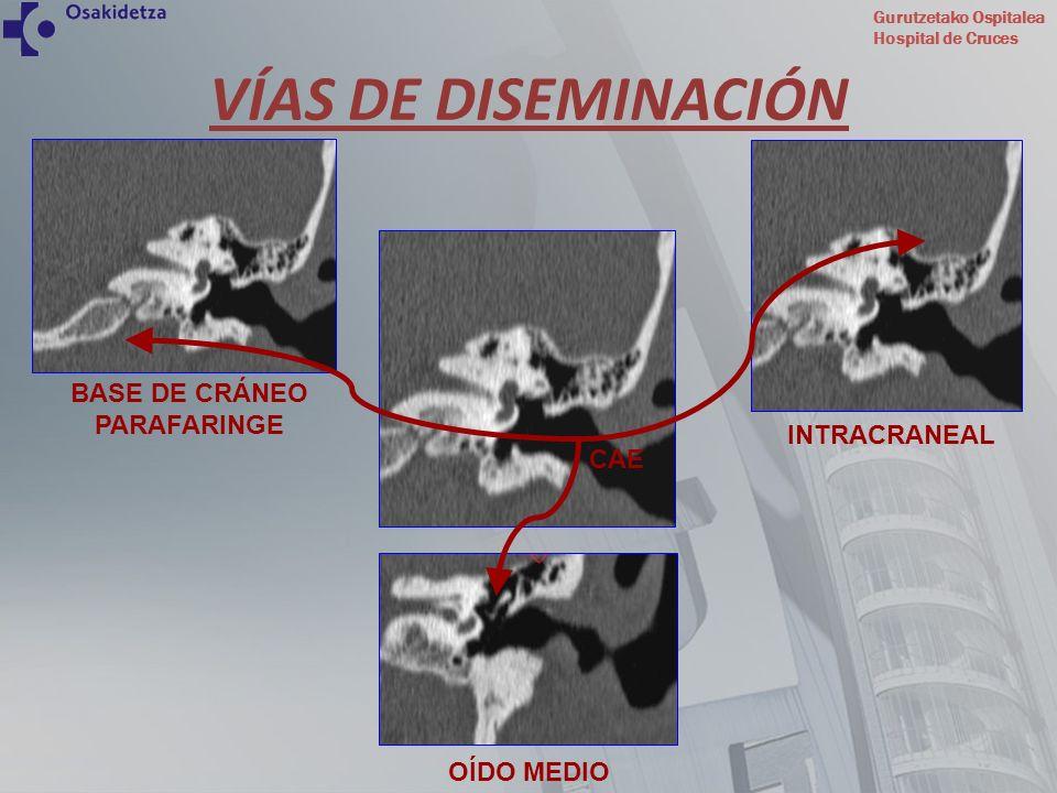 VÍAS DE DISEMINACIÓN BASE DE CRÁNEO PARAFARINGE INTRACRANEAL CAE
