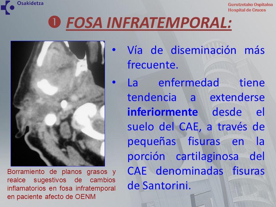  FOSA INFRATEMPORAL: Vía de diseminación más frecuente.
