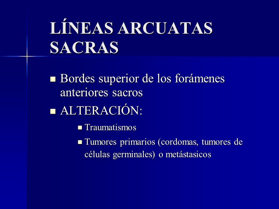 LÍNEAS ARCUATAS SACRAS