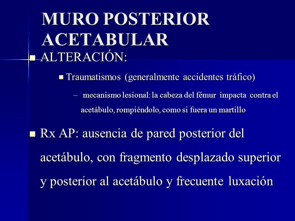 MURO POSTERIOR ACETABULAR