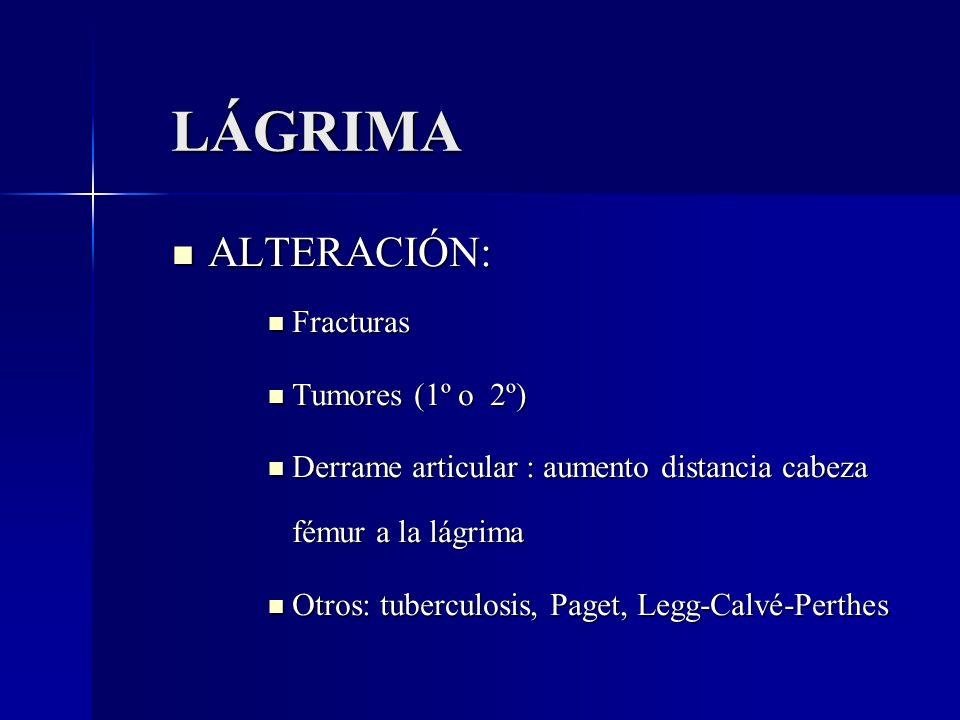 LÁGRIMA ALTERACIÓN: Fracturas Tumores (1º o 2º)