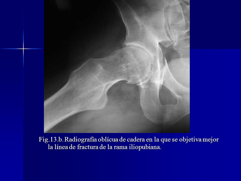 Fig.13.b.
