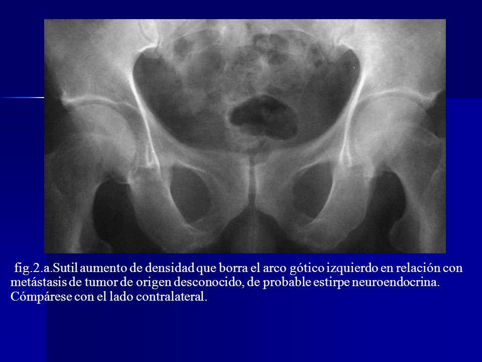 fig.2.a.Sutil aumento de densidad que borra el arco gótico izquierdo en relación con metástasis de tumor de origen desconocido, de probable estirpe neuroendocrina. Cómpárese con el lado contralateral.