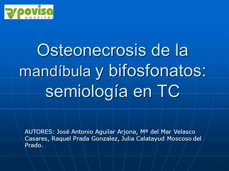 Osteonecrosis de la mandíbula y bifosfonatos: semiología en TC