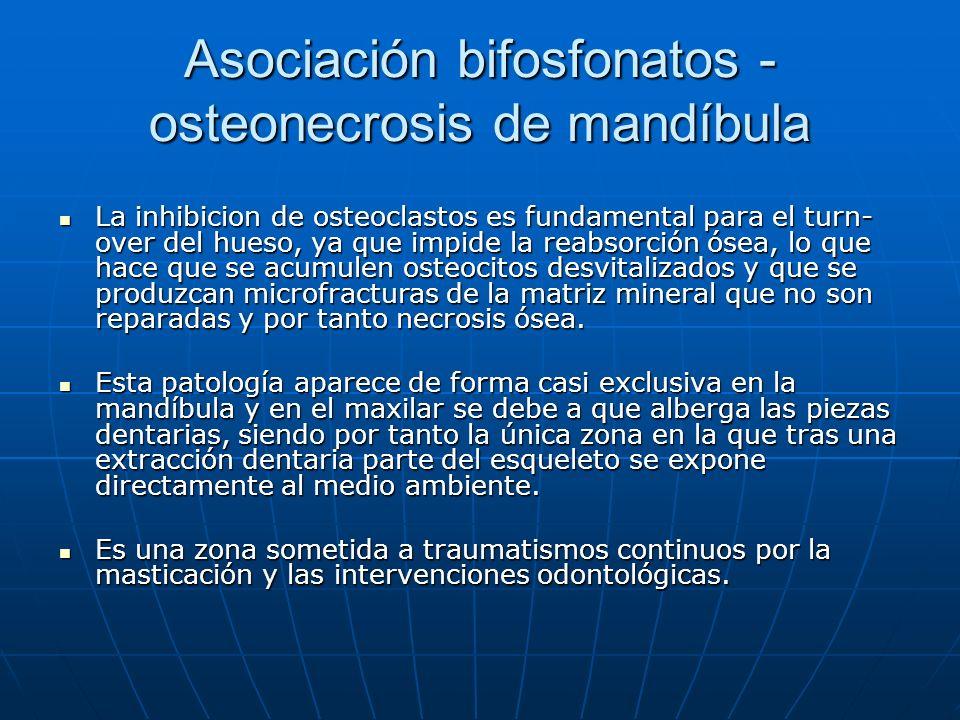 Asociación bifosfonatos - osteonecrosis de mandíbula